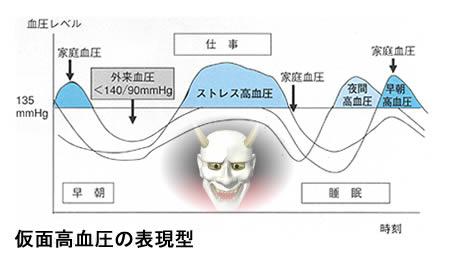 仮面高血圧の血圧の日内変動