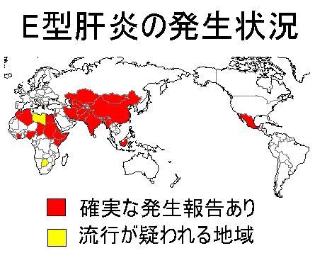 世界各地のE型肝炎の発生状況を示した地図