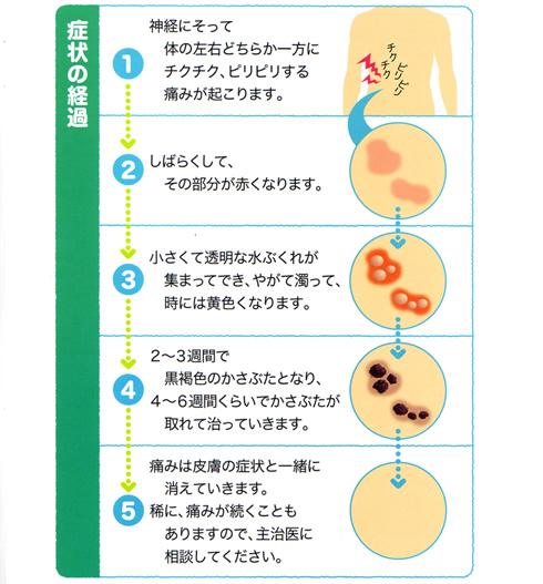 帯状疱疹の症状の時間的経過