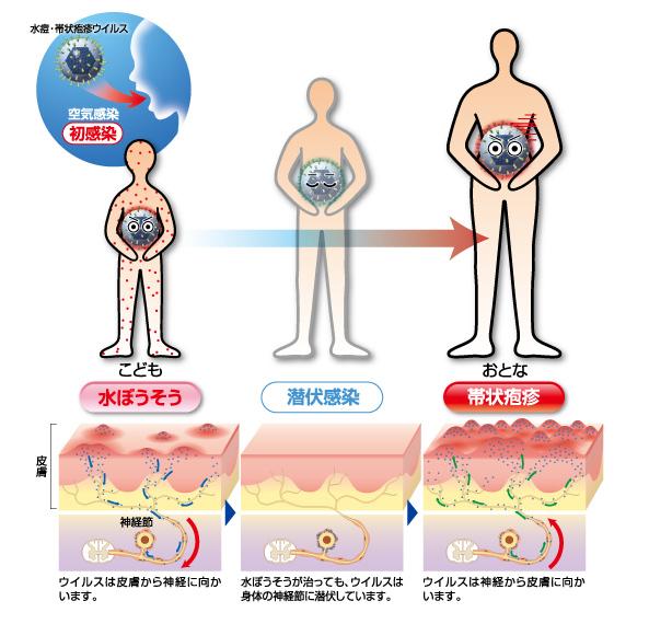水疱瘡後のウイルスの潜伏感染が帯状疱疹の原因となることの解説図