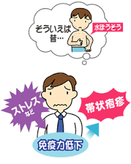 帯状疱疹とストレス 免疫力低下の関連