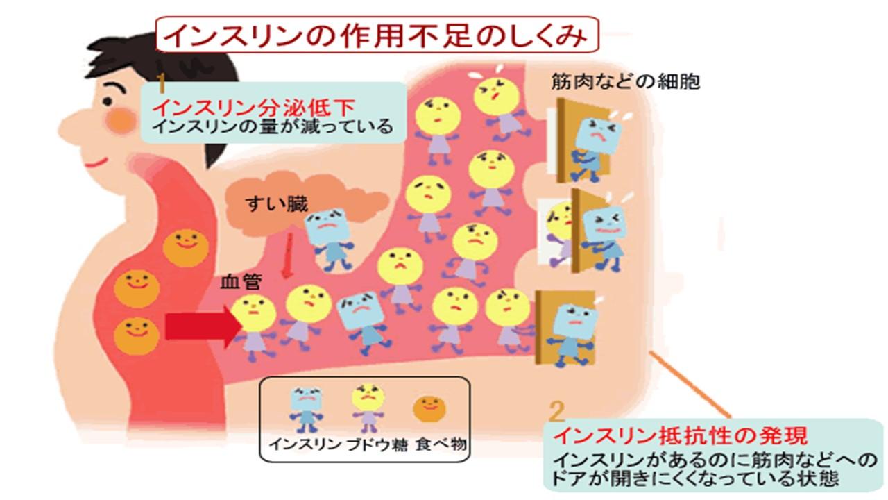 インスリン抵抗性 インスリン分泌低下を説明する図