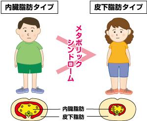 皮下脂肪と内臓脂肪とアディポカイン