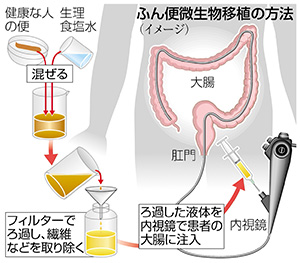 糞便微生物相移植治療の解説図
