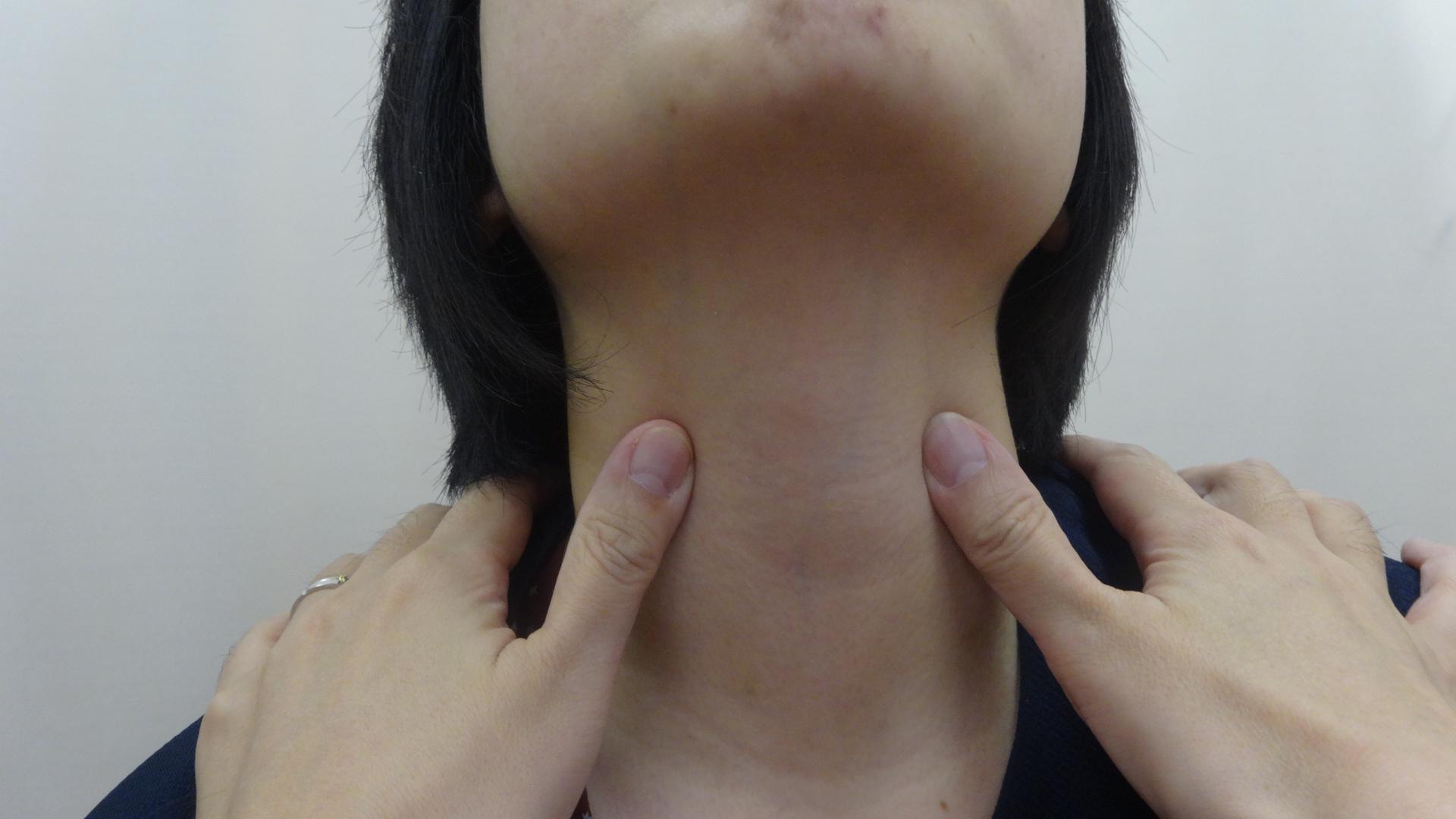 甲状腺を診察している様子