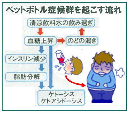 清涼飲料水の飲み過ぎが糖尿病を引き起こすメカニズム