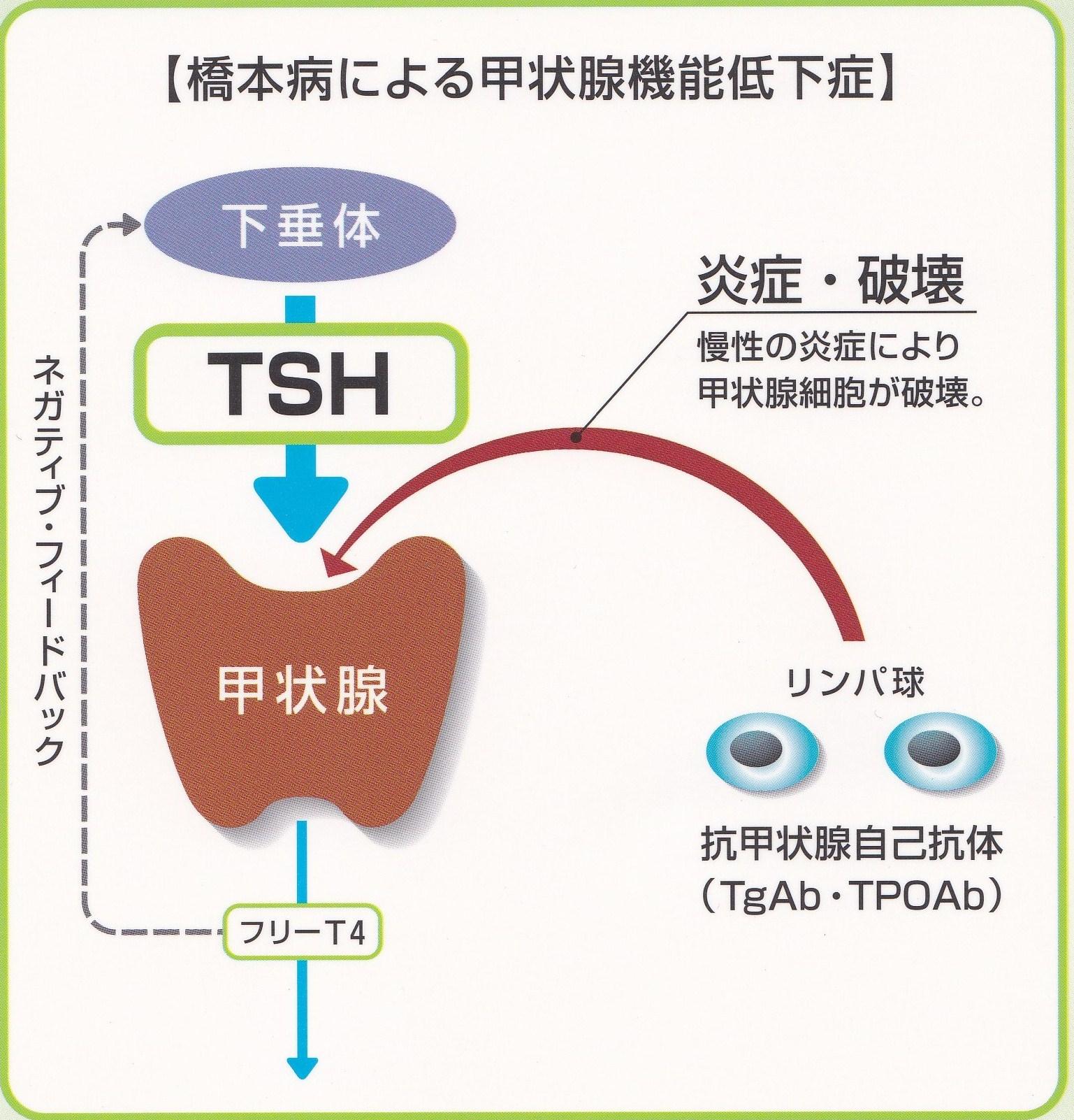 橋本病の病態への自己抗体の関与を説明する図
