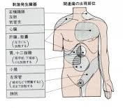 関連痛を感じる場所を示す図