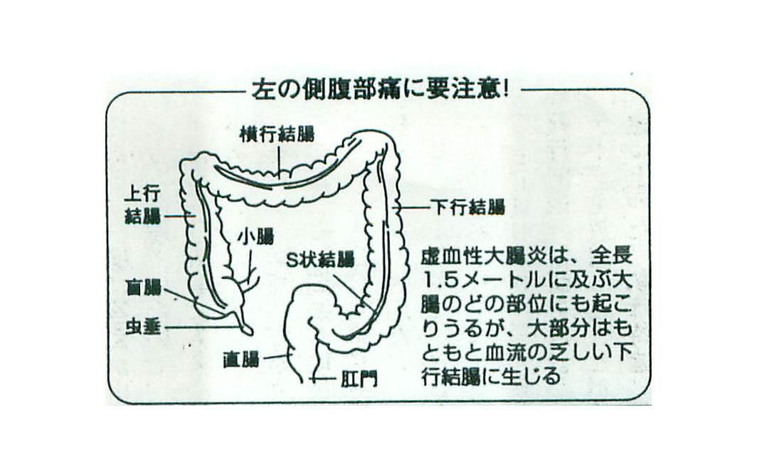 虚血性腸炎が起こる場所を示した図
