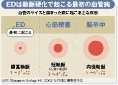 勃起障害は動脈硬化の初期段階で見られることを説明する図