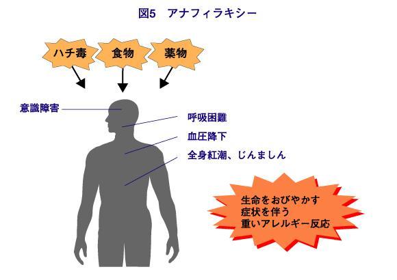 アナフィラキシーについて説明する図