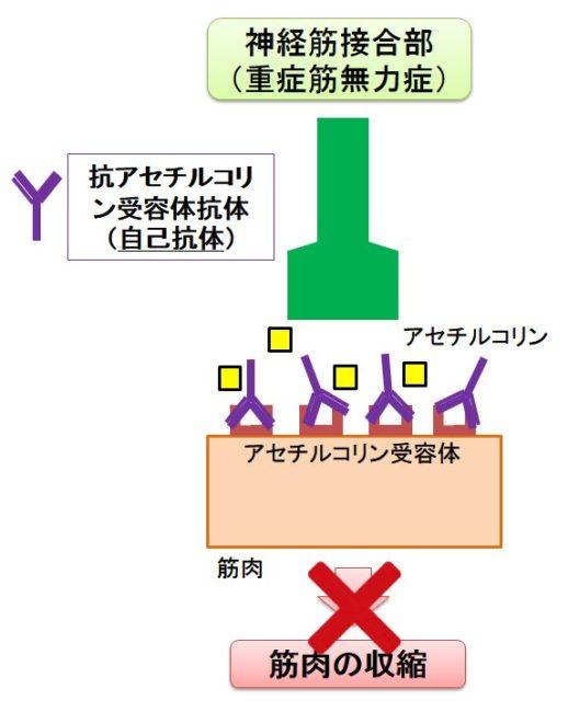 抗アセチルコリン抗体によるⅤ型反応について説明した図