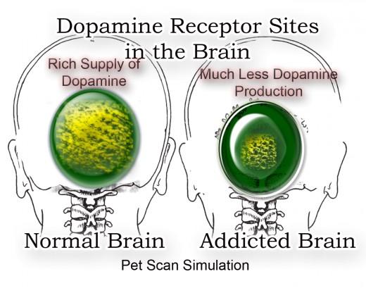 依存症に人では脳内のドパミンが減少していることを示す図