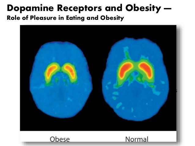 肥満な人でのドパミン合成・分泌量減少 受容体の量や活性の低下を示す図