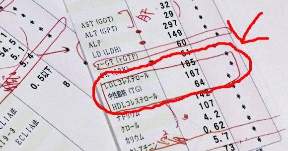 健診の結果表に記されたLDLとHDL