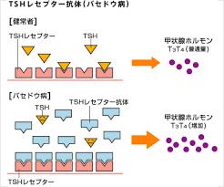 バセドウ病の発症へのTRAb TSAbの関与を説明する図