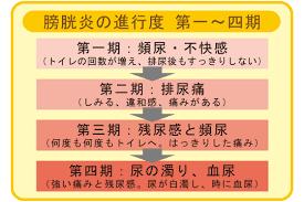 膀胱炎の進行に伴う症状の変化についてまとめた図