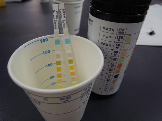 試験紙による尿検査の写真
