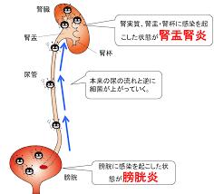 腎盂腎炎を起こす機序を示す図