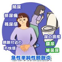 急性単純性膀胱炎の症状をまとめた図