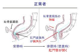 排便時の肛門周囲の筋肉の弛緩を示す図