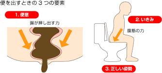 姿勢 腹圧などの排便に必要とされる要素をまとめた図