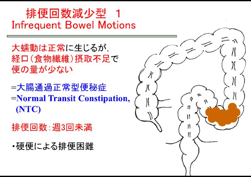 結腸通過時間正常型の特徴を示した図