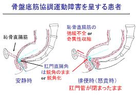 骨盤底筋 肛門括約筋の協調運動の異常を示した図