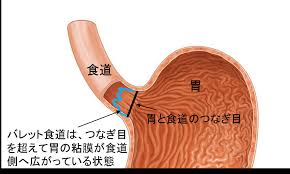 バレット食道では胃粘膜が食道に侵入していることを示す図