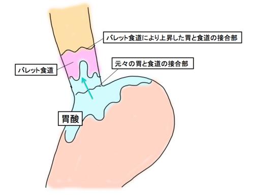 バレット食道の状態について説明する図