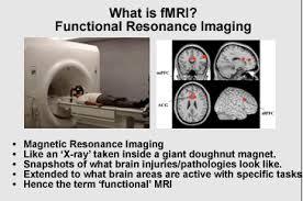 機能的MRI(fMRI)の画像写真