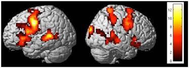 強力なブランドに関連する画像を見たときと宗教画を見たときの脳内の活動パターンは同じなことを示すfMRIの画像