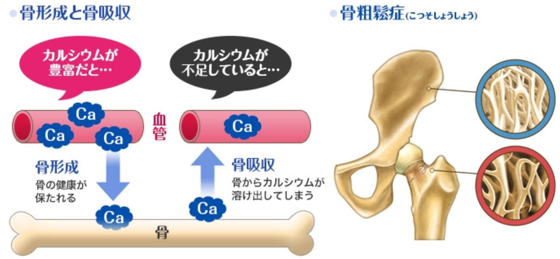 カルシウム不足が持続すると骨粗鬆症を引き起こすことを示す図