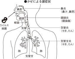 感染が起きた場所の違いによる症状の違いを説明する図