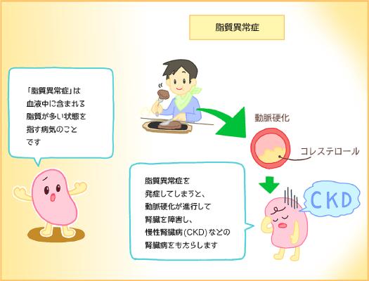 ckdと脂質異常症の関連を示す図
