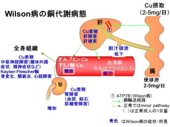 ウイルソン病について説明する図