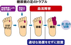 感染症についてまとめた図