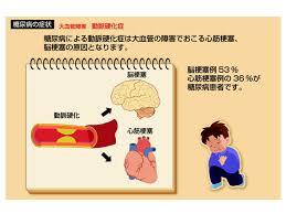 動脈硬化が原因であることを示す図 width=