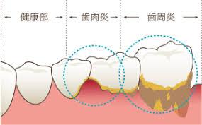 糖尿病と歯周病