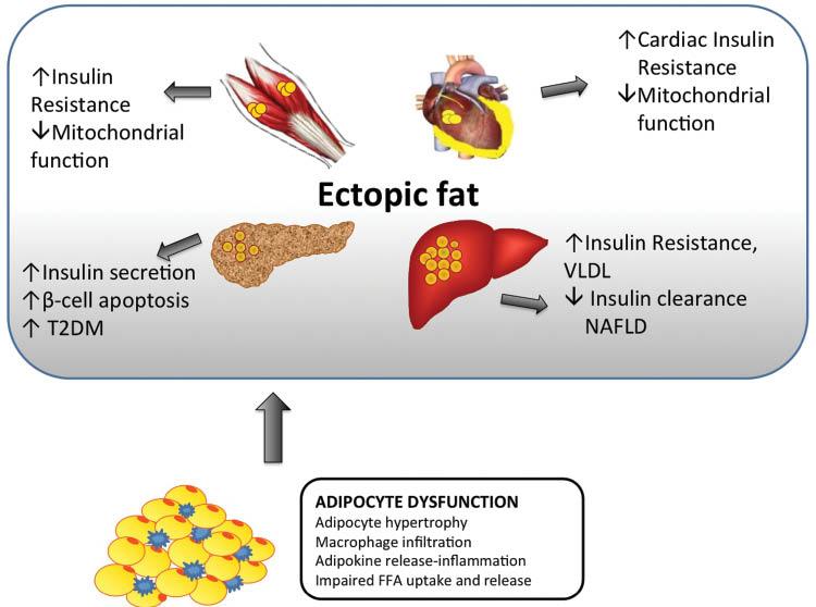 さまざまな臓器で異所性脂肪蓄積により誘導される機能異常をまとめた図
