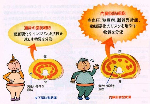 内臓脂肪は皮下脂肪に比べて悪さを示すことを説明する図