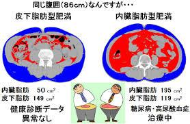 日本人は内臓脂肪が多い隠れ肥満になりやすいことを示した図