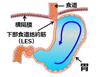 下部食道括約筋(LES)の位置を示す図