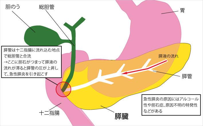 急性膵炎が起こる機序