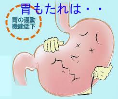 胃の運動異常と症状の関連を示す図
