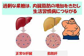 果糖は脂肪肝を起こしやすいことを示す図