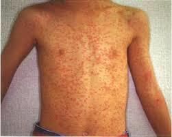 風疹の発疹の写真