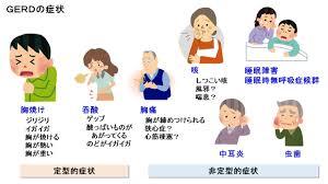 GERDで自覚される症状をまとめた図2