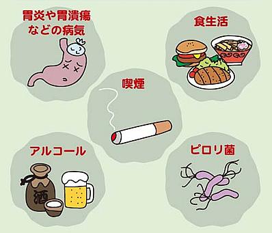 胃酸の逆流を起こす原因をまとめた図