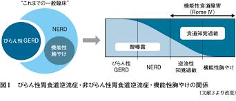 病的な過剰な酸逆流は認めないNERDが60%を占めることを示す図